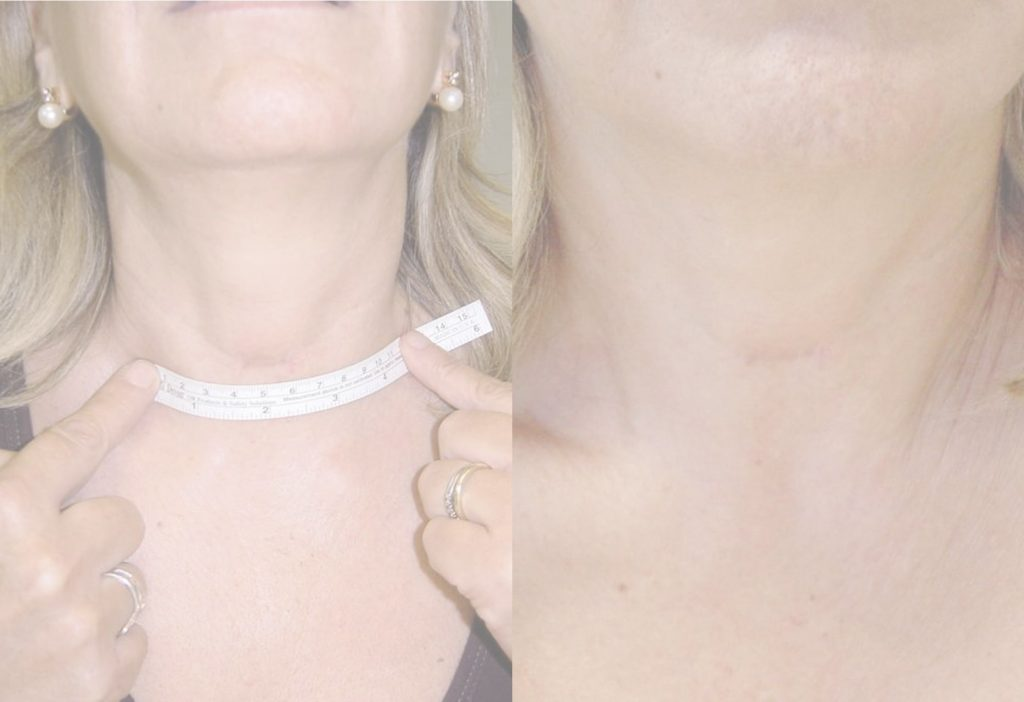Tiroides Cicatriz inferior a 2cm
